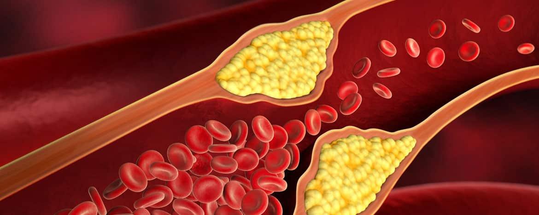 Fettstoffwechselstörung vorbeugen